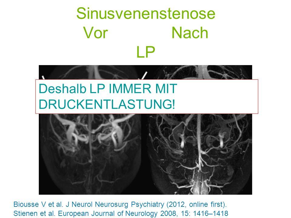 Sinusvenenstenose Vor Nach LP Biousse V et al. J Neurol Neurosurg Psychiatry (2012, online first). Deshalb LP IMMER MIT DRUCKENTLASTUNG! Stienen et al