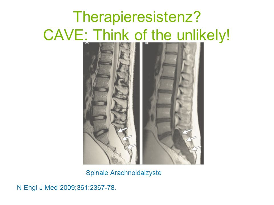 N Engl J Med 2009;361:2367-78. Spinale Arachnoidalzyste Therapieresistenz? CAVE: Think of the unlikely!
