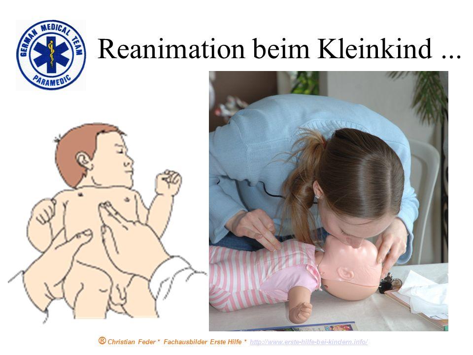 ® Christian Feder * Fachausbilder Erste Hilfe * http://www.erste-hilfe-bei-kindern.info/http://www.erste-hilfe-bei-kindern.info/ Druckpunkt mit zwei F