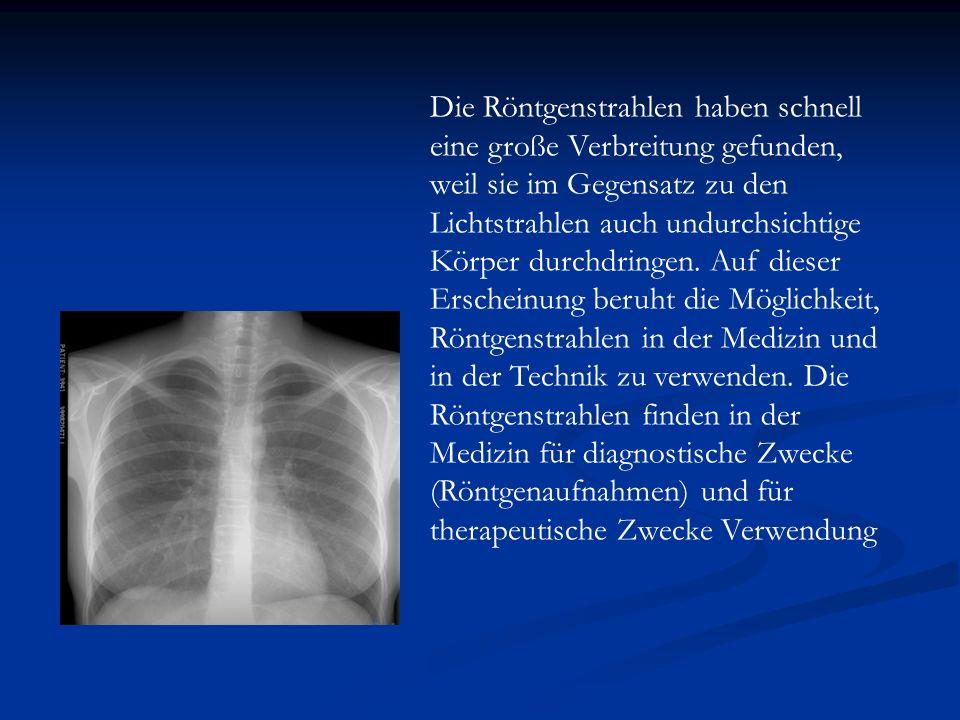 Die Röntgenstrahlen haben schnell eine große Verbreitung gefunden, weil sie im Gegensatz zu den Lichtstrahlen auch undurchsichtige Körper durchdringen