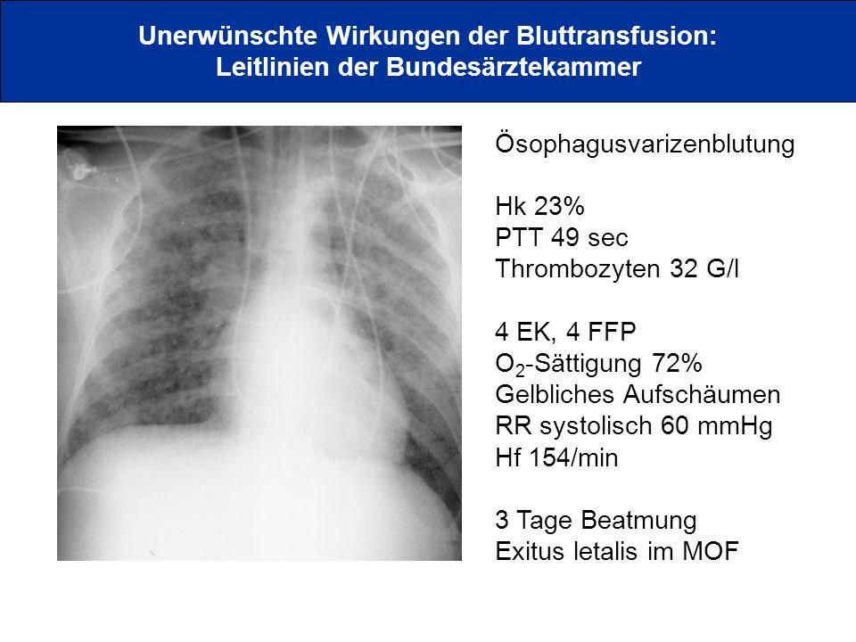 Unerwünschte Wirkungen der Bluttransfusion: Leitlinien der Bundesärztekammer Ösophagusvarizenblutung Hk 23% PTT 49 sec Thrombozyten 32 G/l 4 EK, 4 FFP
