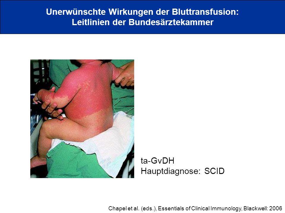Unerwünschte Wirkungen der Bluttransfusion: Leitlinien der Bundesärztekammer Chapel et al. (eds.), Essentials of Clinical Immunology, Blackwell: 2006