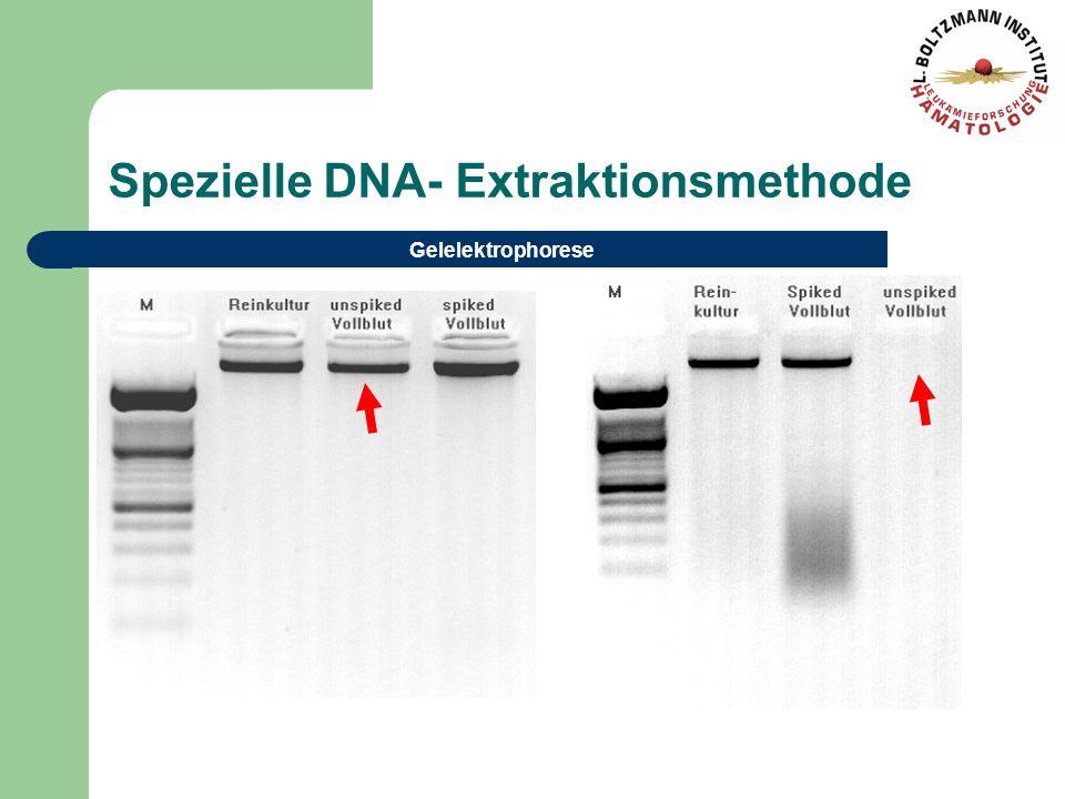 Spezielle DNA- Extraktionsmethode Gelelektrophorese
