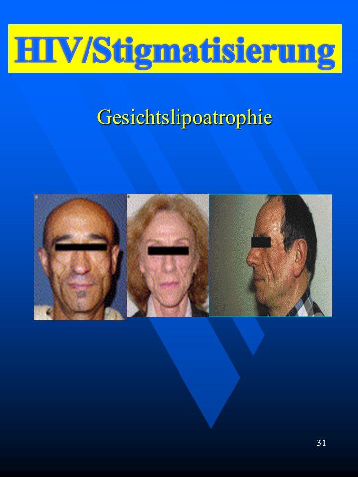Gesichtslipoatrophie 31