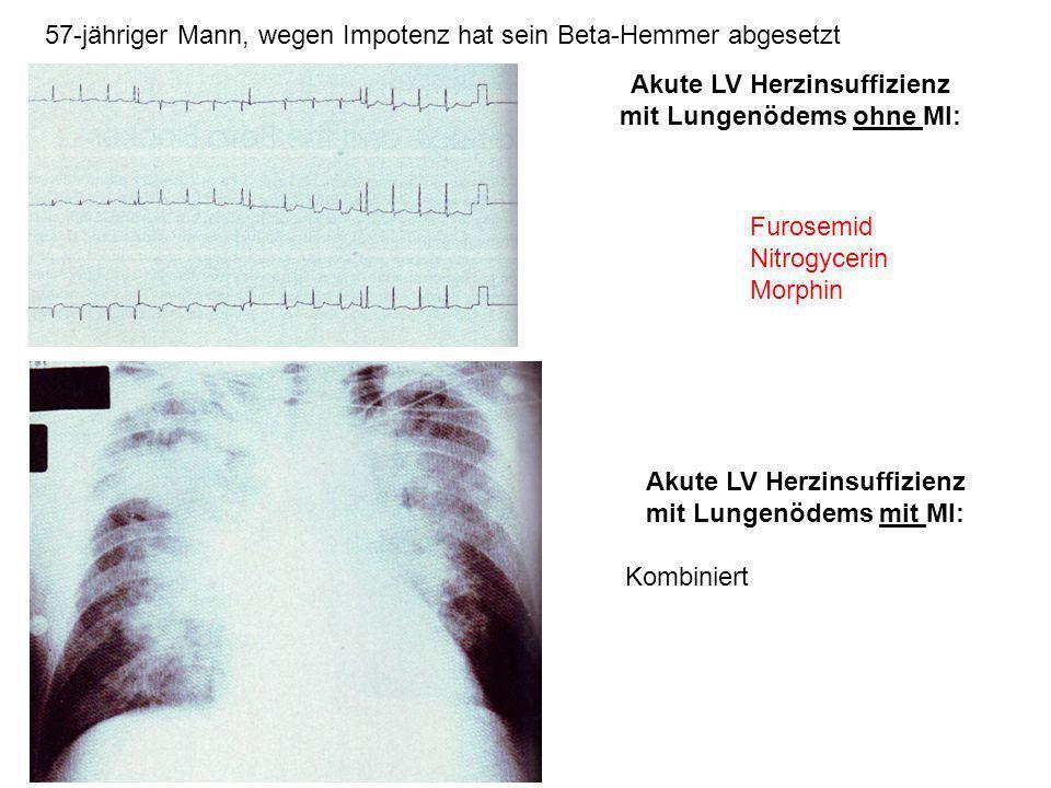 57-jähriger Mann, wegen Impotenz hat sein Beta-Hemmer abgesetzt Akute LV Herzinsuffizienz mit Lungenödems ohne MI: Furosemid Nitrogycerin Morphin Akut