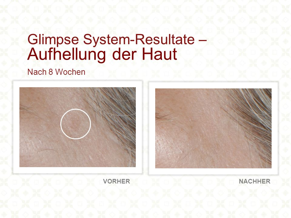 80% meldeten eine sichtbare Reduktion der feinen Linien und Falten 90% bemerkten erhöhte Hautfeuchtigkeit 100% meldeten eine Aufhellung der Haut Höhepunkte: Klinische Resultate bei Verwendung von Glimpse