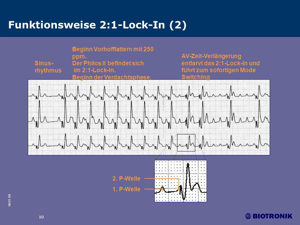 08/03 SSt 10 Funktionsweise 2:1-Lock-In (2) Sinus- rhythmus Beginn Vorhofflattern mit 250 ppm. Der Philos II befindet sich im 2:1-Lock-In. Beginn der