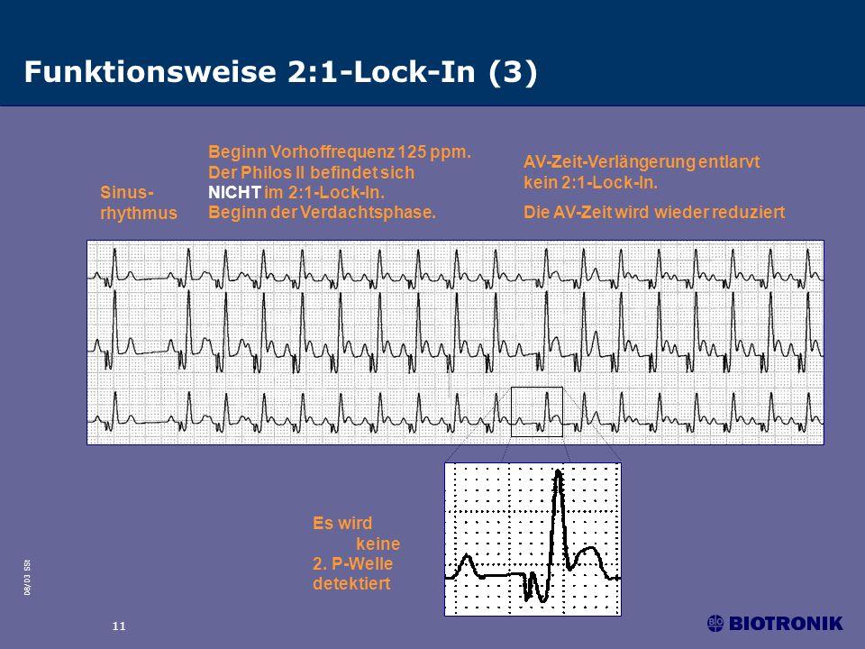 08/03 SSt 11 Funktionsweise 2:1-Lock-In (3) Sinus- rhythmus Beginn Vorhoffrequenz 125 ppm. Der Philos II befindet sich NICHT im 2:1-Lock-In. Beginn de