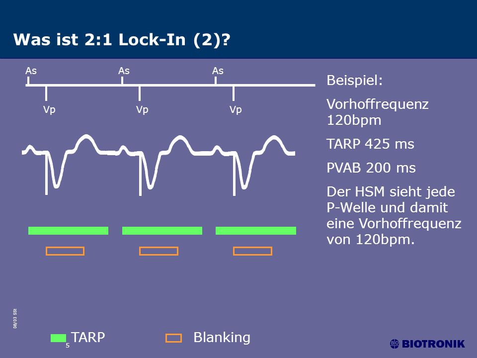 08/03 SSt 5 Was ist 2:1 Lock-In (2)? As Vp TARPBlanking As Vp Beispiel: Vorhoffrequenz 120bpm TARP 425 ms PVAB 200 ms Der HSM sieht jede P-Welle und d