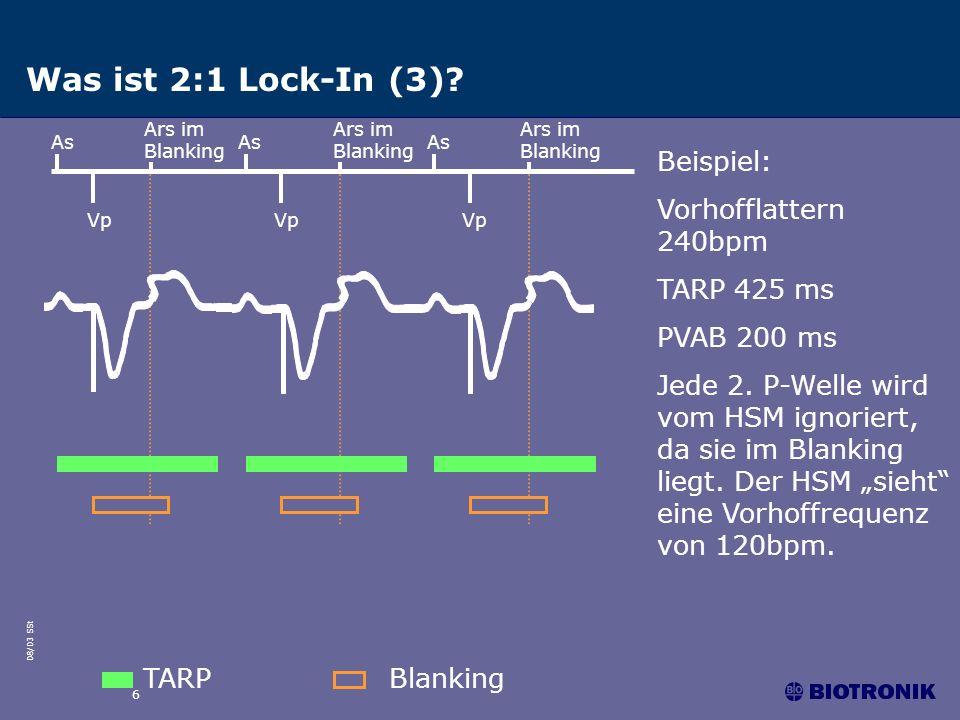 08/03 SSt 6 Was ist 2:1 Lock-In (3)? As Vp TARPBlanking As Vp Beispiel: Vorhofflattern 240bpm TARP 425 ms PVAB 200 ms Jede 2. P-Welle wird vom HSM ign