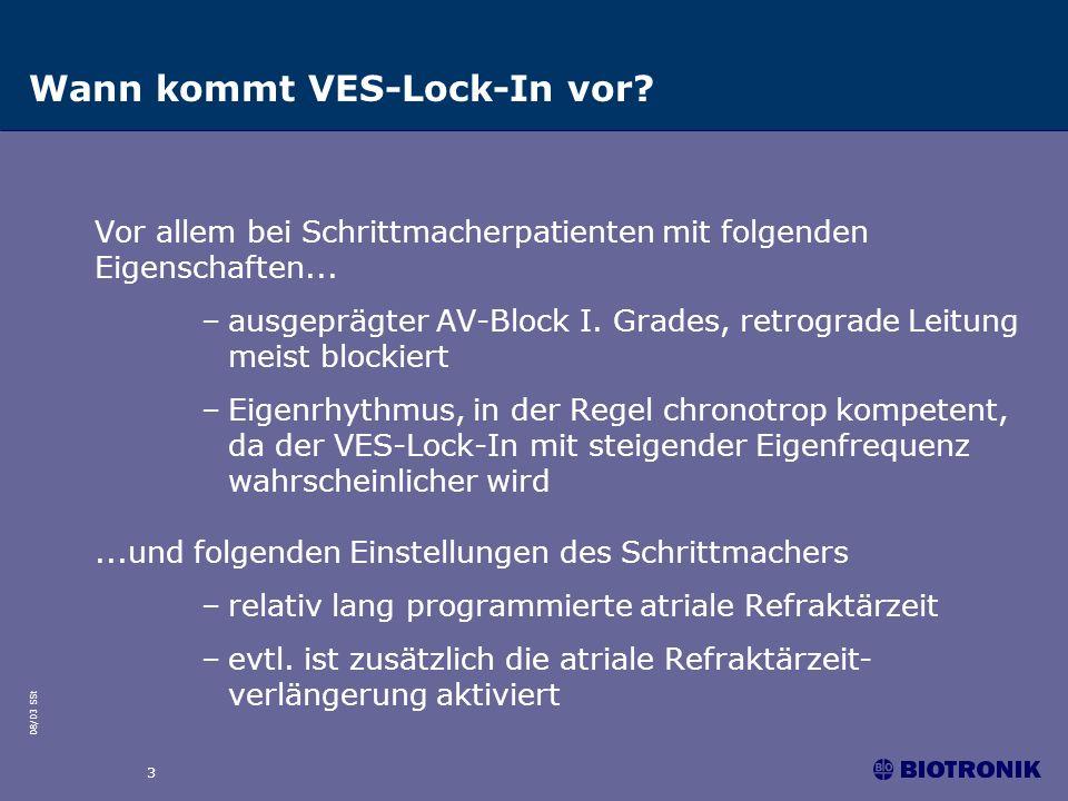 08/03 SSt 3 Wann kommt VES-Lock-In vor? Vor allem bei Schrittmacherpatienten mit folgenden Eigenschaften... –ausgeprägter AV-Block I. Grades, retrogra