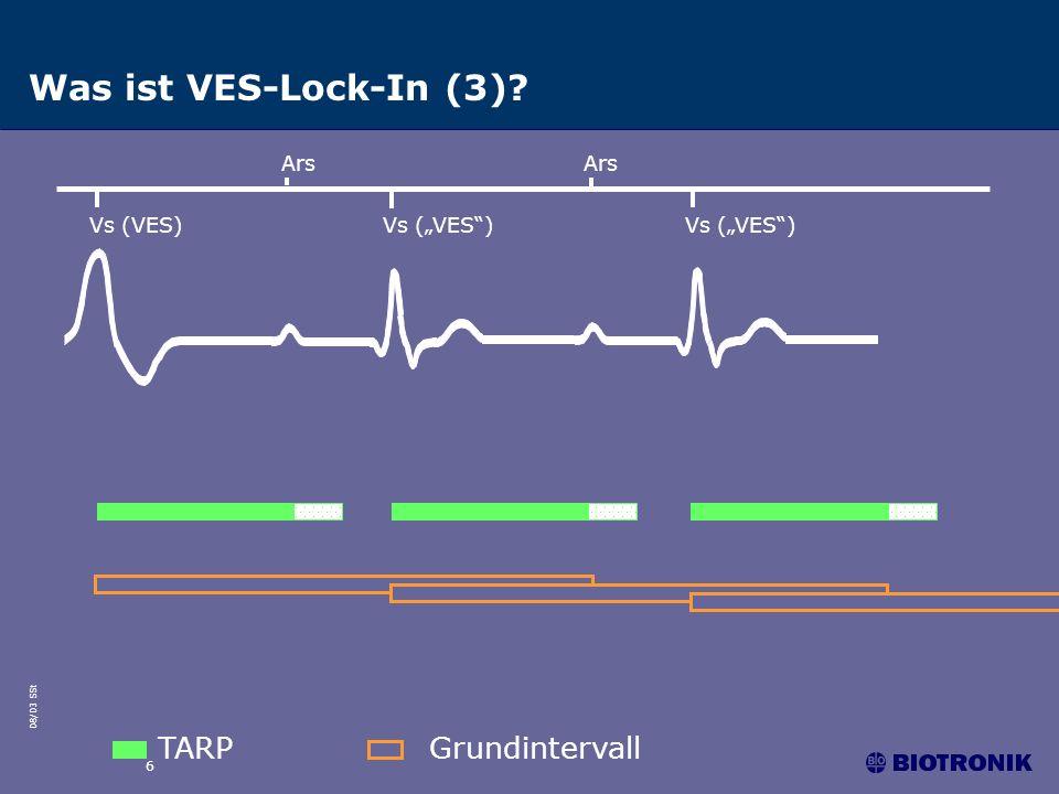 08/03 SSt 7 Funktionsweise des VES-Lock-In-Schutzes Die Funktion sucht nach aufeinander folgenden Ars-Vs-Zyklen.