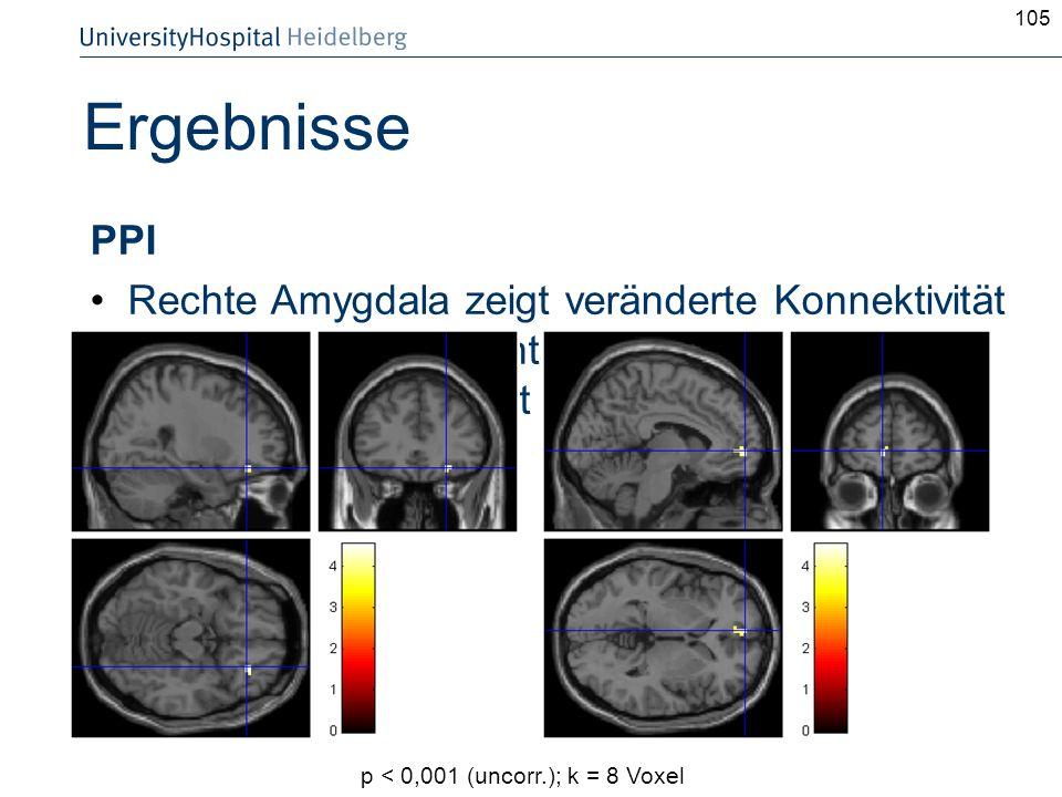 105 Ergebnisse PPI Rechte Amygdala zeigt veränderte Konnektivität mit rechtem orbitofrontalem Cortex und linkem BA 10 in Abhängigkeit der Condition p