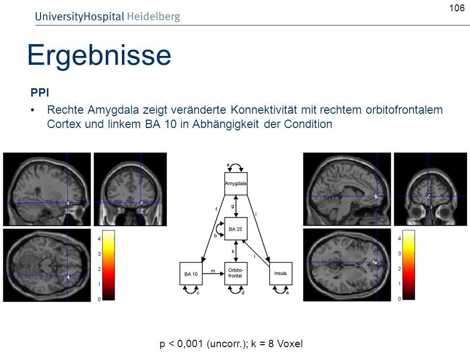 PPI Rechte Amygdala zeigt veränderte Konnektivität mit rechtem orbitofrontalem Cortex und linkem BA 10 in Abhängigkeit der Condition 106 Ergebnisse p
