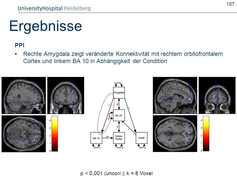 107 Ergebnisse PPI Rechte Amygdala zeigt veränderte Konnektivität mit rechtem orbitofrontalem Cortex und linkem BA 10 in Abhängigkeit der Condition p
