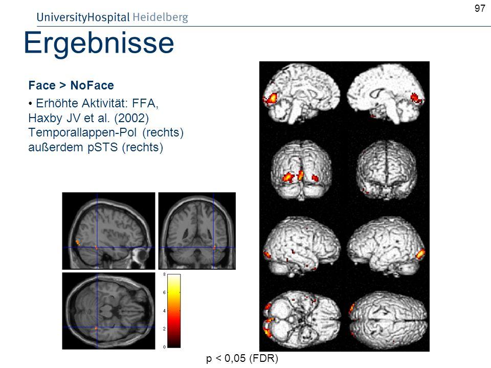97 Ergebnisse Face > NoFace Erhöhte Aktivität: FFA, Haxby JV et al. (2002) Temporallappen-Pol (rechts) außerdem pSTS (rechts) p < 0,05 (FDR)