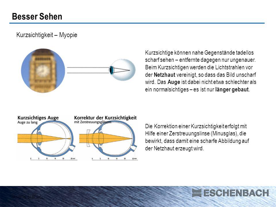 Übersichtigkeit – Hyperopie Während das kurzsichtige Auge zu lang gebaut ist, ist das übersichtige zu kurz.