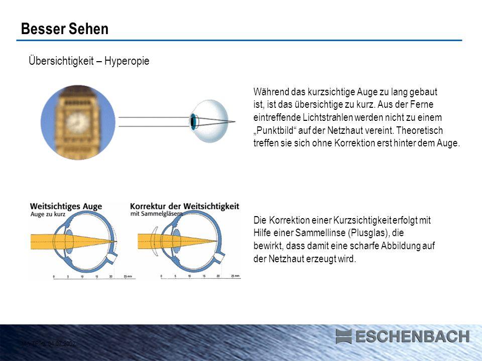 Übersichtigkeit – Hyperopie Während das kurzsichtige Auge zu lang gebaut ist, ist das übersichtige zu kurz. Aus der Ferne eintreffende Lichtstrahlen w