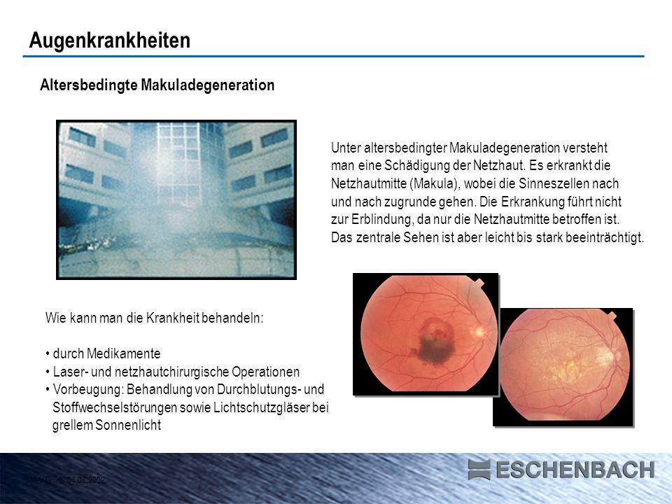 Grüner Star (Glaukom) Der Grüne Star ist eine heimtückische Erkrankung: Ohne dass sie Schmerzen verursacht, führt eine Drucksteigerung im Augeninneren zur allmählichen Schädigung der Netzhaut, schließlich zur Zerstörung des Sehnervs.