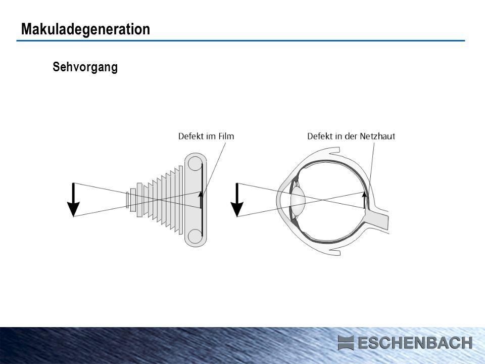Sehvorgang Makuladegeneration