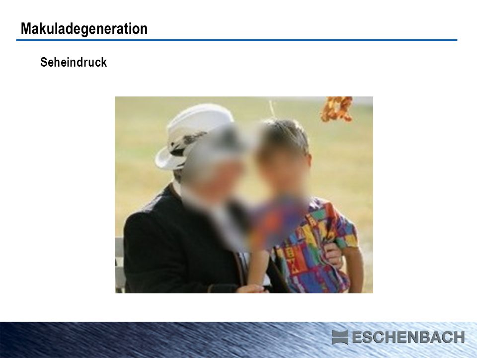 Seheindruck Makuladegeneration