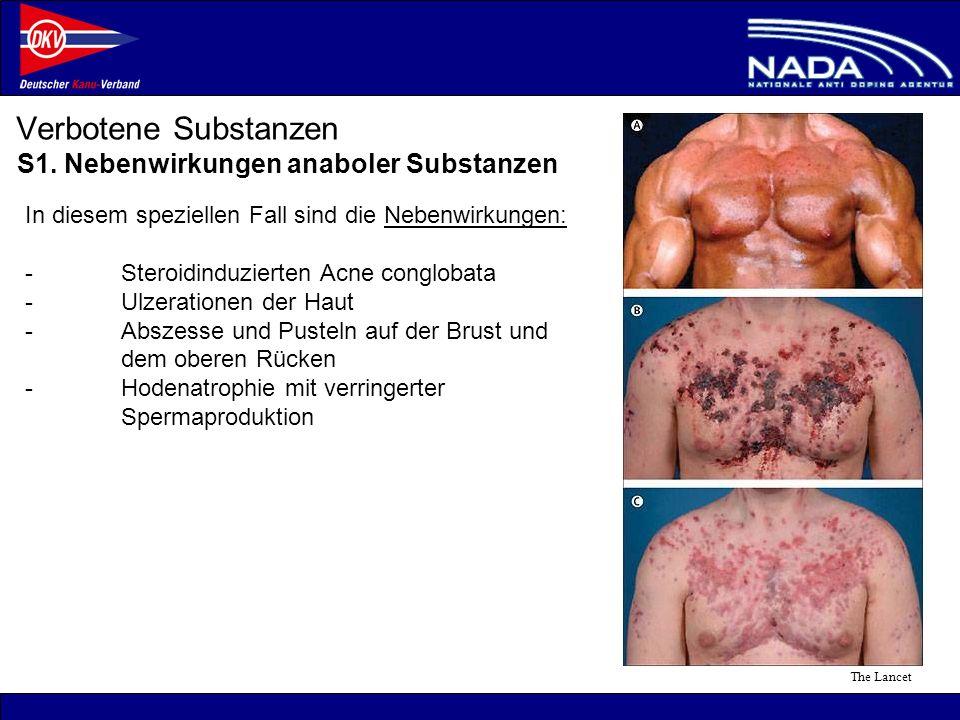 © NADA 2008 Verbotene Substanzen ©mediamo S1. Nebenwirkungen anaboler Substanzen The Lancet In diesem speziellen Fall sind die Nebenwirkungen: -Steroi