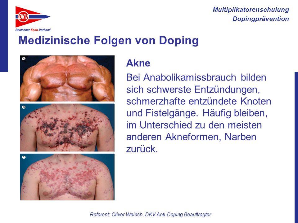 Multiplikatorenschulung Dopingprävention Referent: Oliver Weirich, DKV Anti-Doping Beauftragter Medizinische Folgen von Doping Akne Bei Anabolikamissb
