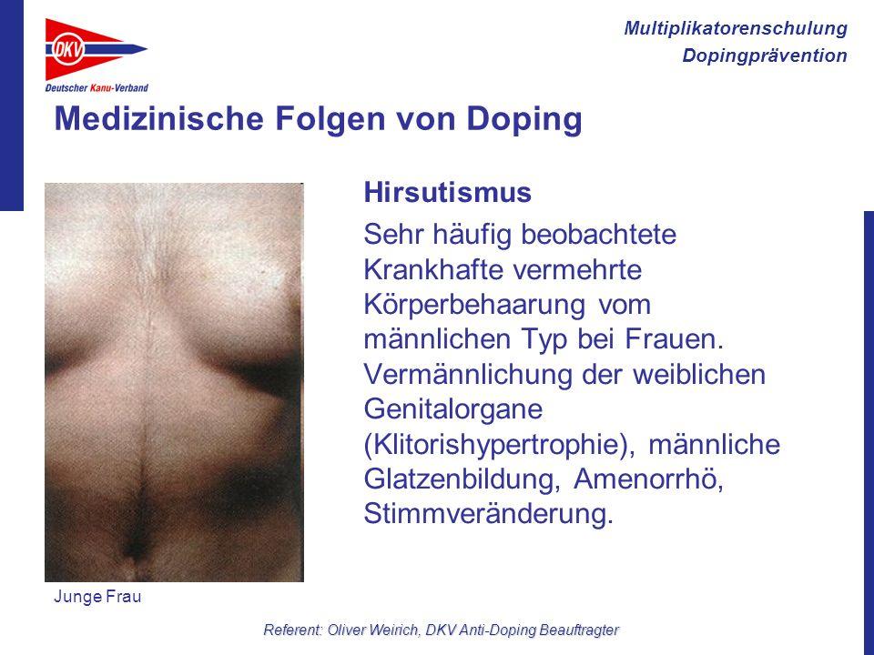 Multiplikatorenschulung Dopingprävention Referent: Oliver Weirich, DKV Anti-Doping Beauftragter Medizinische Folgen von Doping Hirsutismus Sehr häufig
