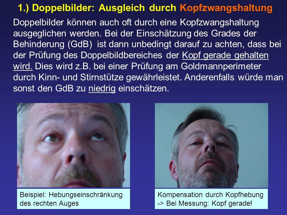 1.) Doppelbilder: Ausgleich durch Kopfzwangshaltung Doppelbilder können auch oft durch eine Kopfzwangshaltung ausgeglichen werden. Bei der Einschätzun