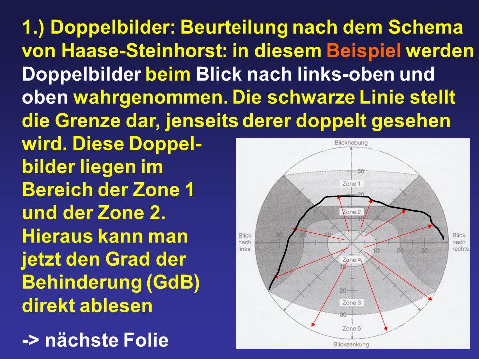 1.) Doppelbilder: Beurteilung nach dem Schema von Haase-Steinhorst: in diesem Beispiel werden Doppelbilder beim Blick nach links-oben und oben wahrgen