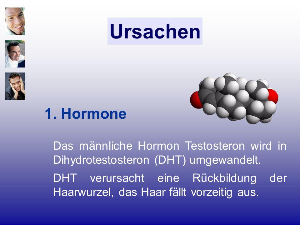 Ursachen 1. Hormone Das männliche Hormon Testosteron wird in Dihydrotestosteron (DHT) umgewandelt. DHT verursacht eine Rückbildung der Haarwurzel, das