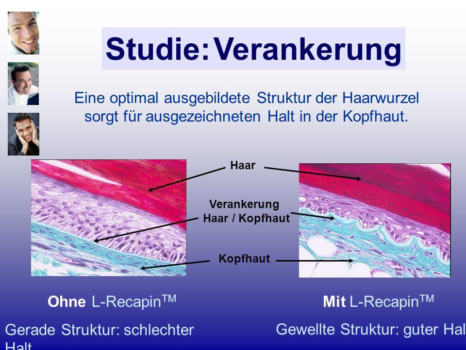 Eine optimal ausgebildete Struktur der Haarwurzel sorgt für ausgezeichneten Halt in der Kopfhaut. Ohne L-Recapin TM Gerade Struktur: schlechter Halt M