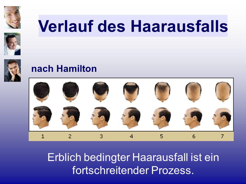 nach Hamilton Verlauf des Haarausfalls Erblich bedingter Haarausfall ist ein fortschreitender Prozess.