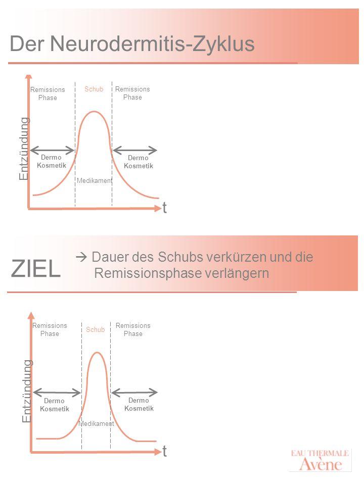 Der Neurodermitis-Zyklus Schub Remissions Phase Dermo Kosmetik Medikament Entzündung t Remissions Phase Dermo Kosmetik ZIEL Schub Remissions Phase Med