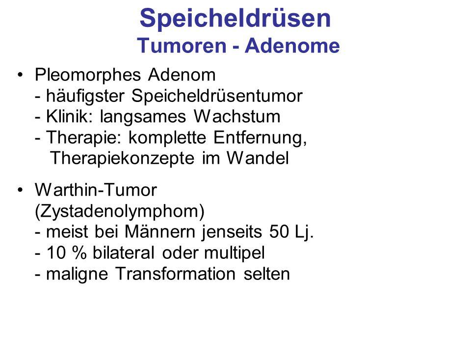 Speicheldrüsen Tumoren - Adenome Pleomorphes Adenom - häufigster Speicheldrüsentumor - Klinik: langsames Wachstum - Therapie: komplette Entfernung, Th
