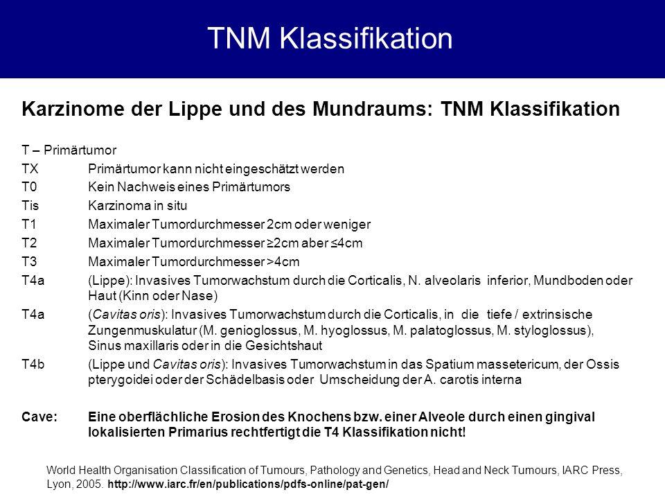 Karzinome der Lippe und des Mundraums: TNM Klassifikation T – Primärtumor TXPrimärtumor kann nicht eingeschätzt werden T0Kein Nachweis eines Primärtum