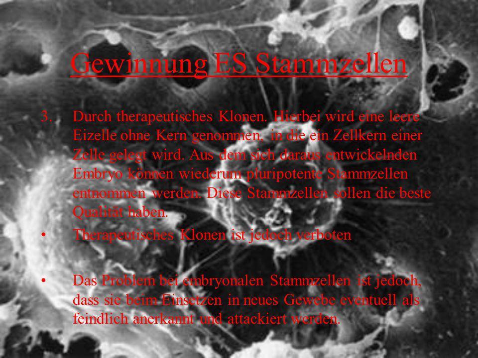 Gewinnung ES Stammzellen 3.Durch therapeutisches Klonen. Hierbei wird eine leere Eizelle ohne Kern genommen, in die ein Zellkern einer Zelle gelegt wi
