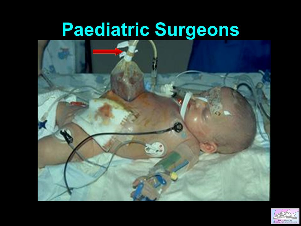Paediatric Surgeons
