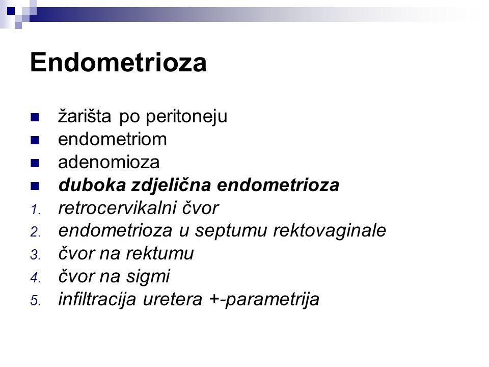 Endometrioza žarišta po peritoneju endometriom adenomioza duboka zdjelična endometrioza 1. retrocervikalni čvor 2. endometrioza u septumu rektovaginal