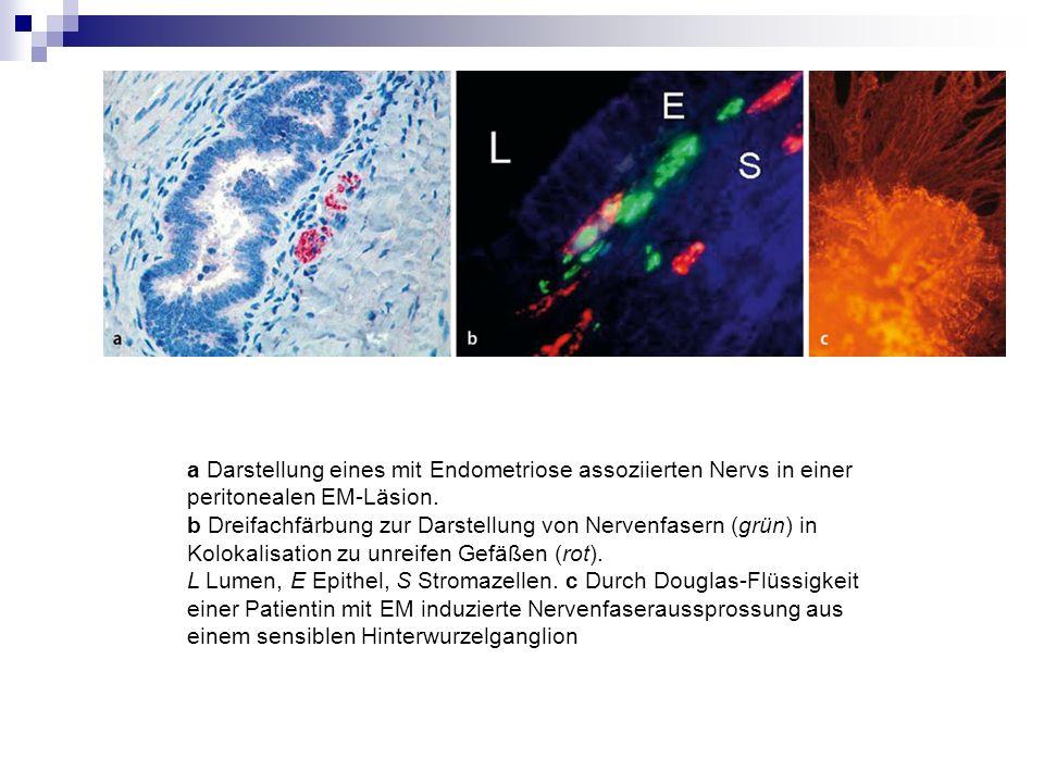 a Darstellung eines mit Endometriose assoziierten Nervs in einer peritonealen EM-Läsion. b Dreifachfärbung zur Darstellung von Nervenfasern (grün) in