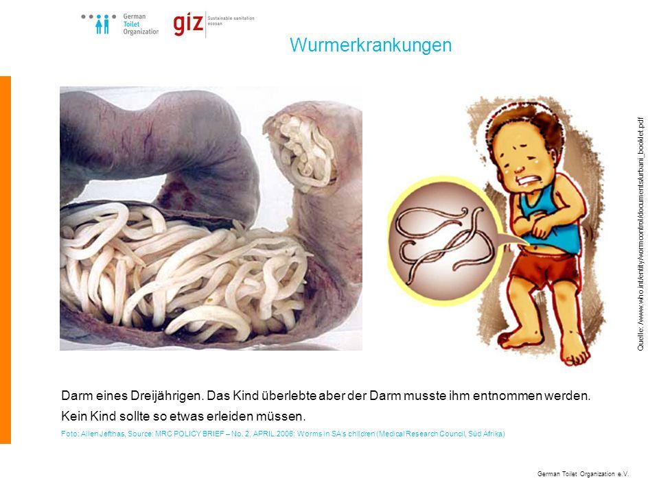 German Toilet Organization e.V. Wurmerkrankungen Darm eines Dreijährigen. Das Kind überlebte aber der Darm musste ihm entnommen werden. Kein Kind soll
