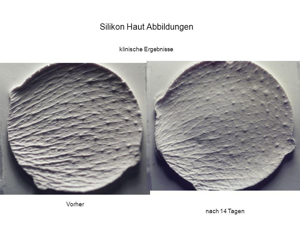 Vorher nach 14 Tagen Silikon Haut Abbildungen klinische Ergebnisse