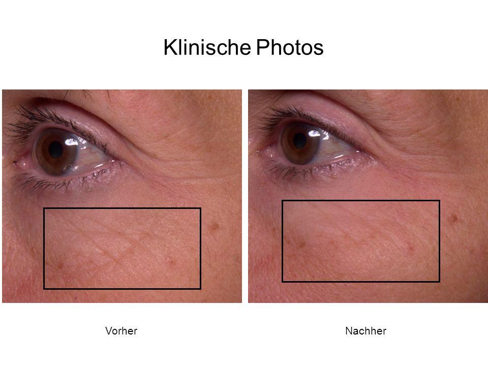 VorherNachher Klinische Photos