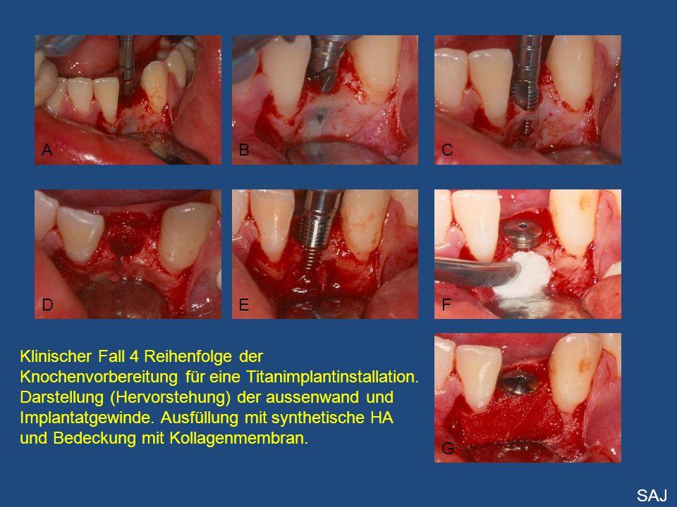 ABC DEF G Klinischer Fall 4 Reihenfolge der Knochenvorbereitung für eine Titanimplantinstallation. Darstellung (Hervorstehung) der aussenwand und Impl