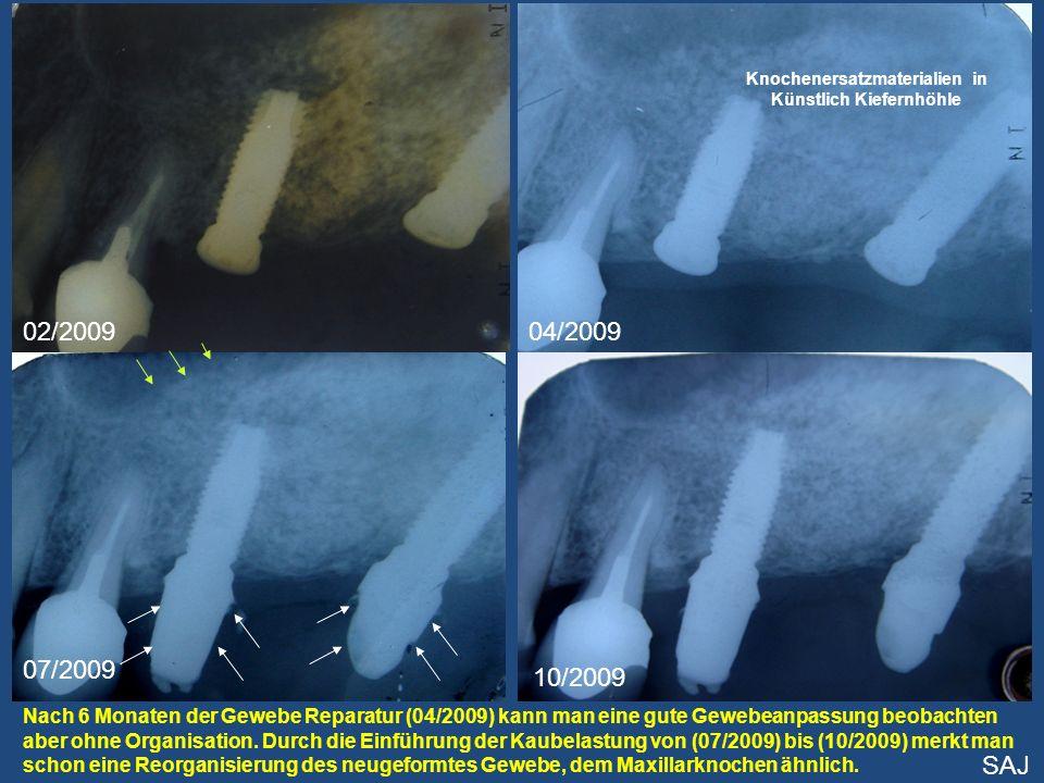02/200904/2009 07/2009 10/2009 Nach 6 Monaten der Gewebe Reparatur (04/2009) kann man eine gute Gewebeanpassung beobachten aber ohne Organisation. Dur