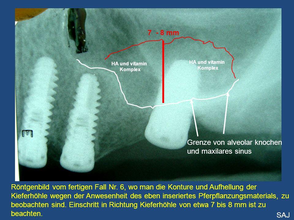 Grenze von alveolar knochen und maxilares sinus HA und vitamin Komplex HA und vitamin Komplex Röntgenbild vom fertigen Fall Nr. 6, wo man die Konture