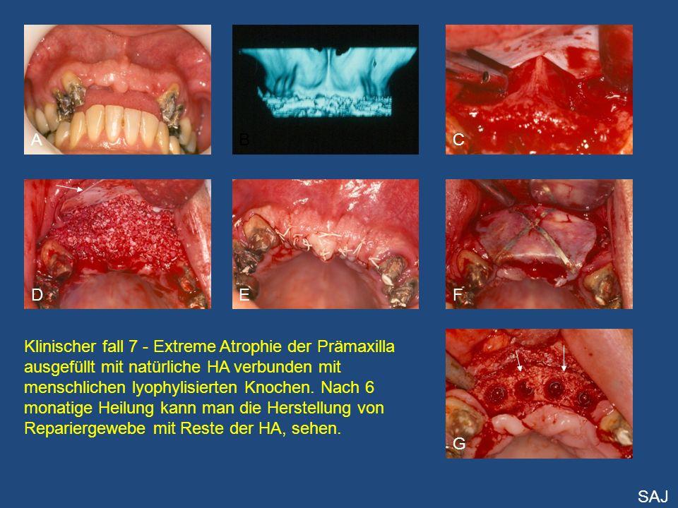 A D CB E G F Klinischer fall 7 - Extreme Atrophie der Prämaxilla ausgefüllt mit natürliche HA verbunden mit menschlichen lyophylisierten Knochen. Nach