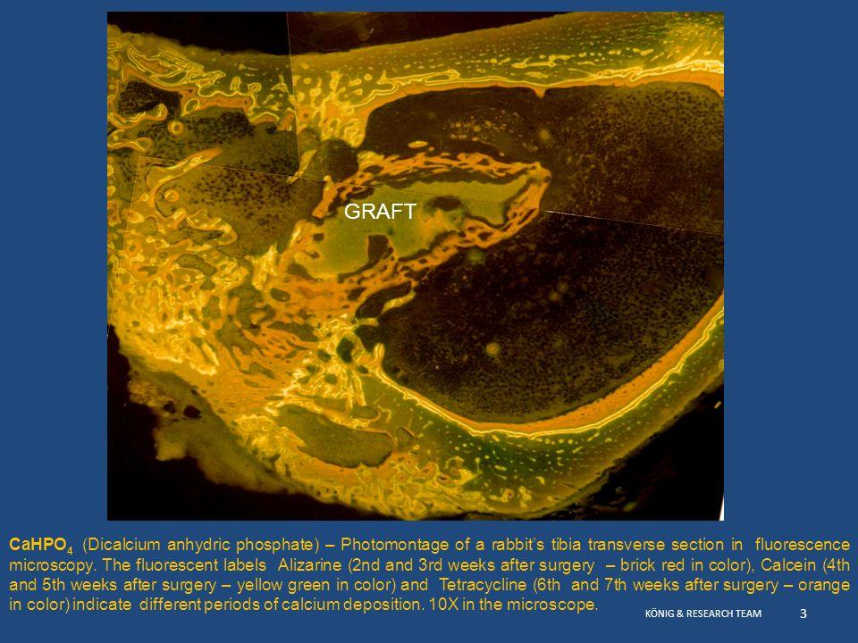 10/2008 11/2008 12/2008 Hydroxylapatite - Synthetik biomaterialien an Maxilares Sinus 01/2009 Klinischer Fall 5 – Reihenfolge von Röntgenbilder vor und nach der Teilweisegen Ausfüllung der Kieferhöhle mit synthetischer HA und autologen Knochen.