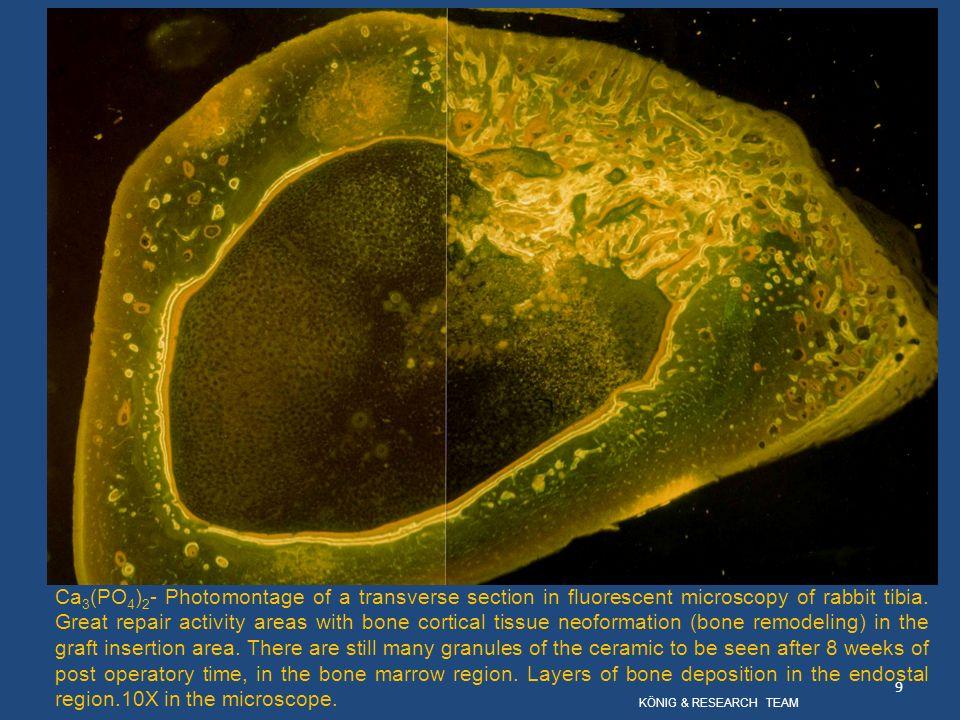 Klinischer Fall 2 – zahnalveolare Region, nach einer Extraktion, mit gefährlichem Knochendefekt.