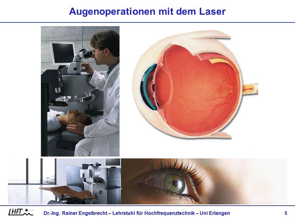 Dr.-Ing. Rainer Engelbrecht – Lehrstuhl für Hochfrequenztechnik – Uni Erlangen 5 Augenoperationen mit dem Laser
